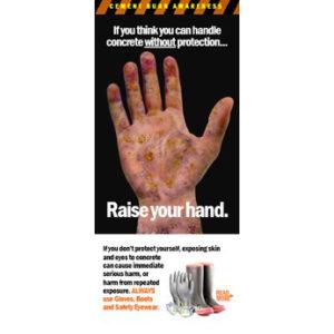 cement-burn-awareness-brochure